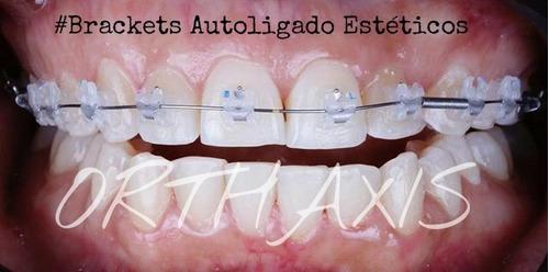 Ortodoncia Autoligado Estéticos - Orthaxis