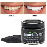 Pasta Dental Blanqueadora Miracle Teeth Whitener