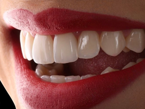 Blanqueamiento Dental Led + Limpieza Dental + Fluor