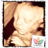 Ecografia 4d / Scan Fetal / Doppler / Obstétrica / Tn
