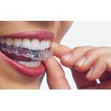 Placas De Contención Post Ortodoncia