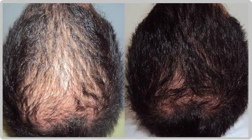 La reconstitución de los cabello la placenta