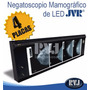 Negatoscopio Mamográfico .de L E D .para 4 Películas