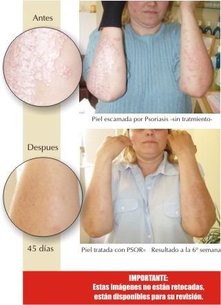 El tratamiento de la psoriasis en izraile las revocaciones