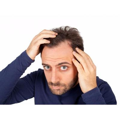 De la caída de los cabello aconsejen