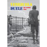 Venezuela duele